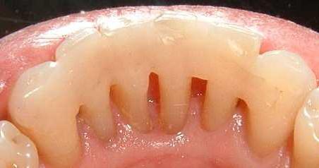 Шинирование зубов Бийск