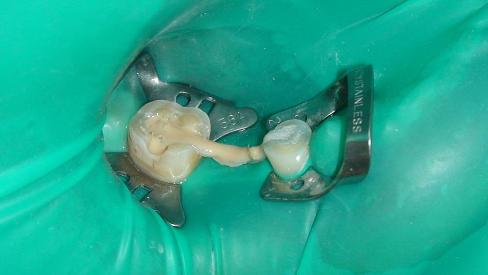 Стоматология Бийск отзывы