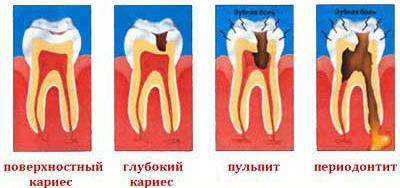 Стоматология Бийск Лечение периодонтита